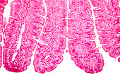 Villi of small intestine, light micrograph, magnification 100x