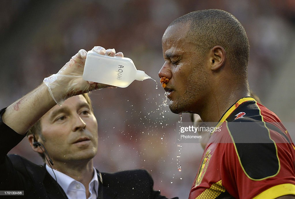 Vincent Kompany of Belgium receives medical attention during the FIFA 2014 World Cup Group A qualifying match between Belgium and Serbia at the King Baudouin stadium on June 07, 2013 in Brussels, Belgium.