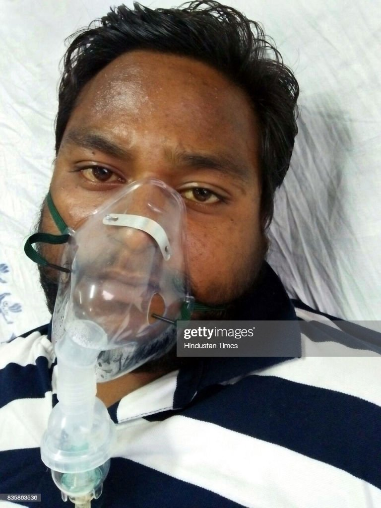 Vishan Kumar admitted after sewer cleaning at Lok Nayak Jai Prakash Narayan Hospital, on August 20, 2017 in New Delhi, India. Rishi Pal, 40, along with Bishan, 30, Kiran Pal, 25, and Sumit, 30, fell unconscious after inhaling poisonous gases while cleaning the sewer.