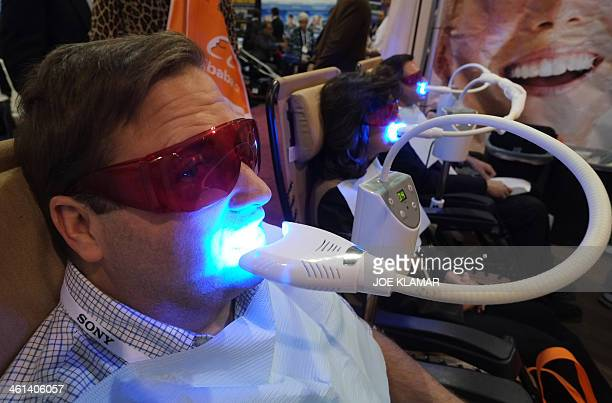 A visitor get his teeth whitened at the Teeth Bright booth during the 2014 International CES at the Las Vegas Convention Center on January 8 2014 in...