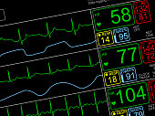 Patient's vital signs on ICU monitor, isolated closeup, dutched left