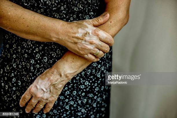 Vitiligo woman portrait