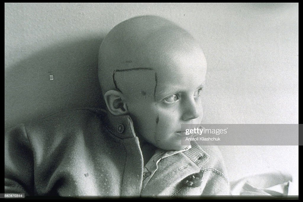 Vladimir aged 7 suffering from cancer in the hospital in Minsk