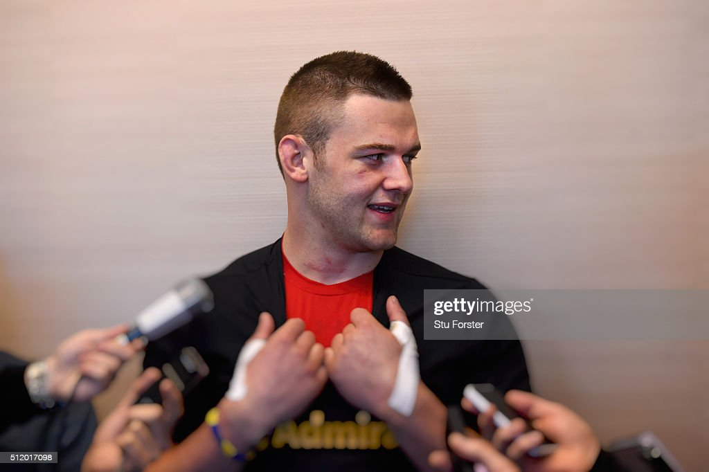 Wales player Dan Lydiate faces the media during a Wales Press conference ahead of their RBS Six Nations match against France, at The Vale Hotel on February 24, 2016 in Cardiff, Wales.