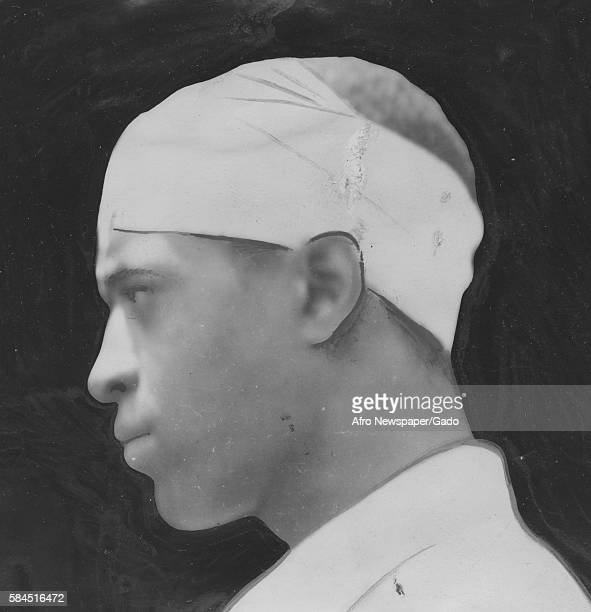 Walter Garrison an AfricanAmerican man who was beaten by JG Delcourse a Caucasian motorcycle police officer shown with bandages on his head Richmond...