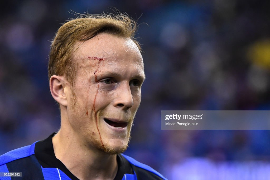 Wandrille Lefevre #5 of the Montreal Impact drips blood from his forehead during the MLS game against the Seattle Sounders FC at Olympic Stadium on March 11, 2017 in Montreal, Quebec, Canada. The Seattle Sounders FC and the Montreal Impact end up in a 2-2 draw.
