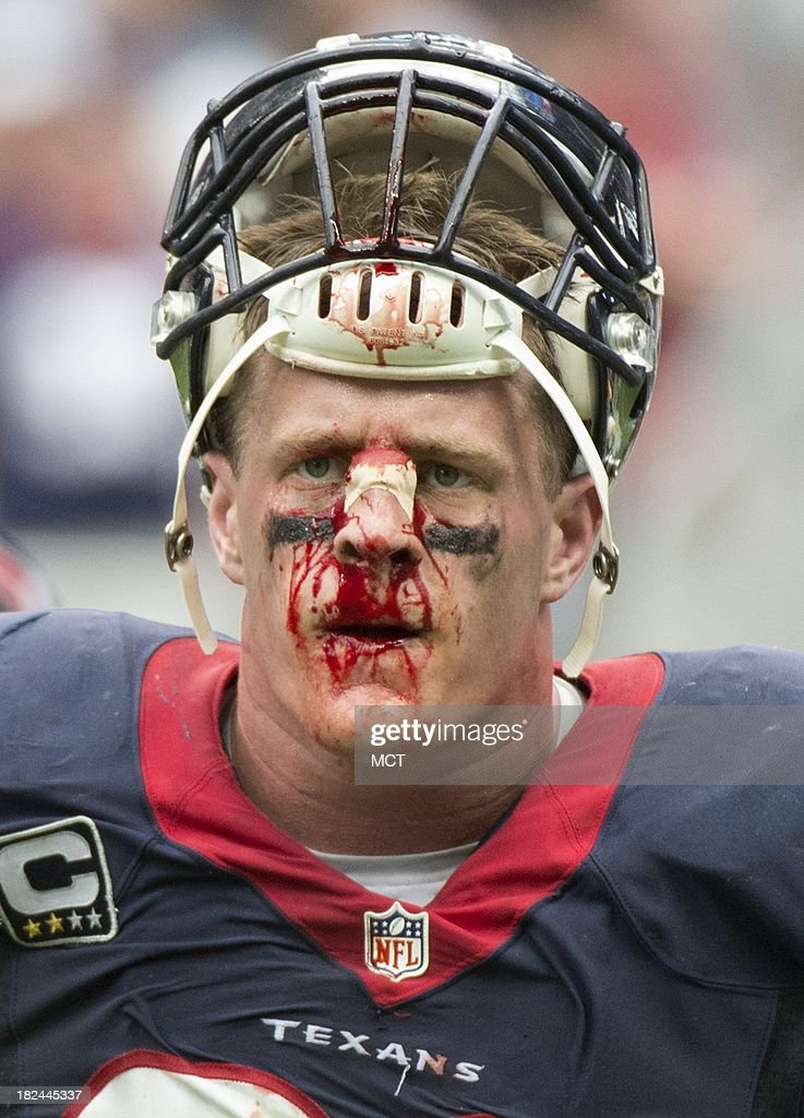 J.J. Watt (99) of the Houston Texans is bloodied as he walks off the field in the second half of a 23-20 overtime loss to the Seattle Seahawks on Sunday, September 29, 2013, in Houston, Texas.