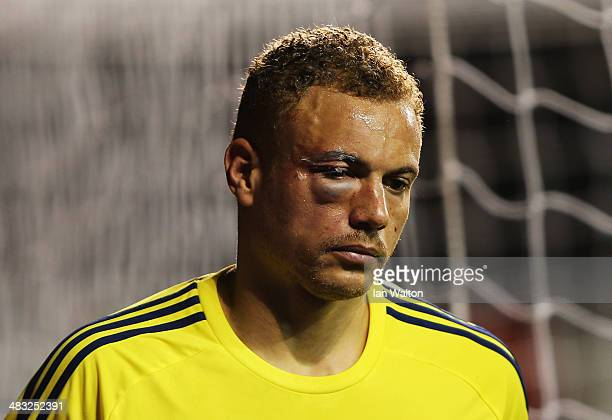 Wes Brown of Sunderland looks on with a badly bruised eye during the Barclays Premier League match between Tottenham Hotspur and Sunderland at White...