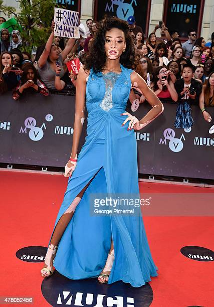Winnie Harlow arrives at the 2015 MuchMusic Video Awards at MuchMusic HQ on June 21 2015 in Toronto Canada
