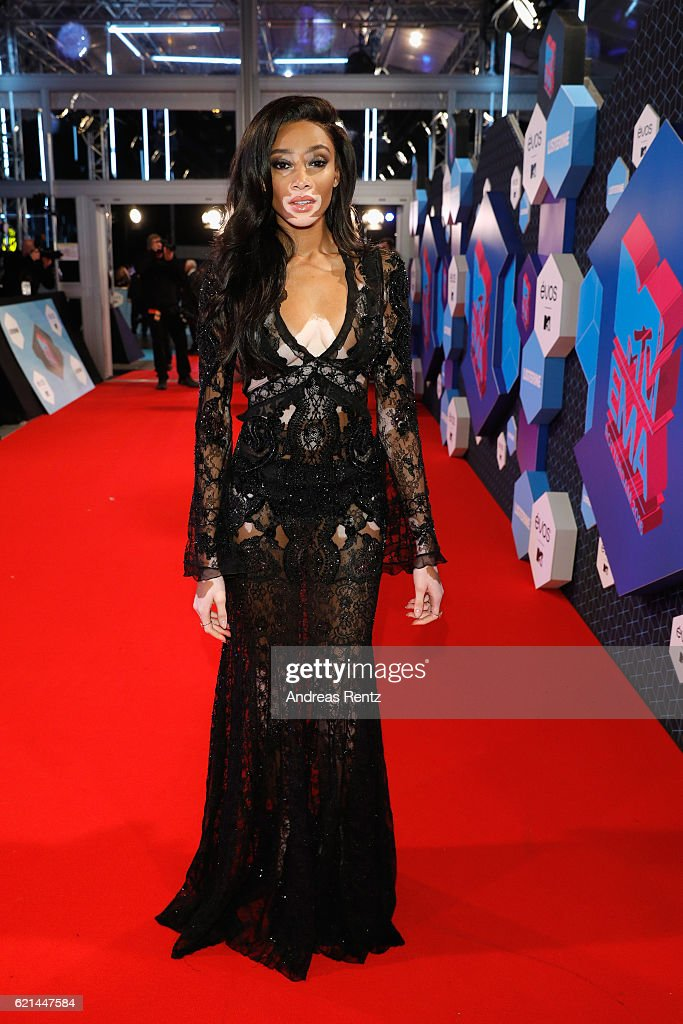 winnie-harlow-attends-the-mtv-europe-music-awards-2016-on-november-6-picture-id621447584