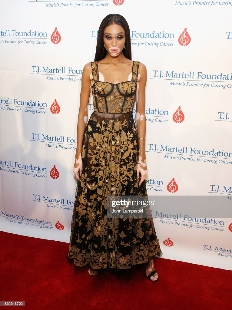 Winnie Harlow attends T.J. Martell 42nd Annual New York Honors Gala at Guastavino's on October 17, 2017 in New York City.
