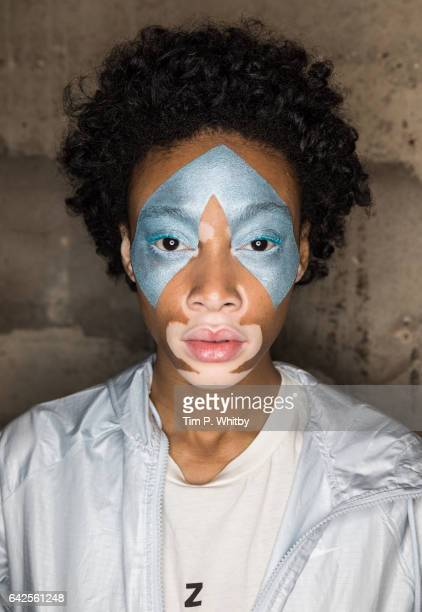 Winnie Harlow backstage ahead of the Fashion East runway show during the London Fashion Week February 2017 collections at Tate Modern on February 18...