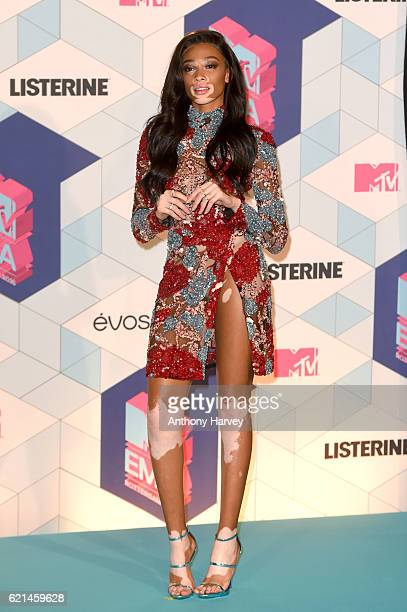 Winnie Harlow poses in the winner's room after presenting the award for Best Male during the MTV Europe Music Awards 2016 on November 6 2016 in...
