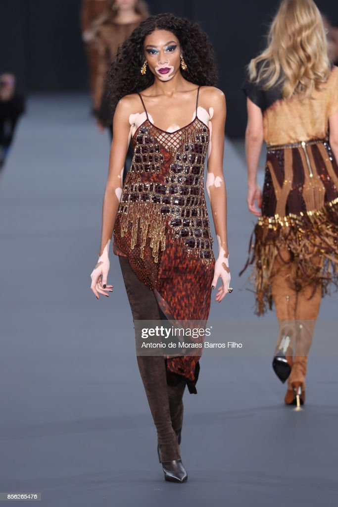 Winnie Harlow walks the runway during the Le Defile L'Oreal Paris show as part of the Paris Fashion Week Womenswear Spring/Summer 2018 on October 1, 2017 in Paris, France.