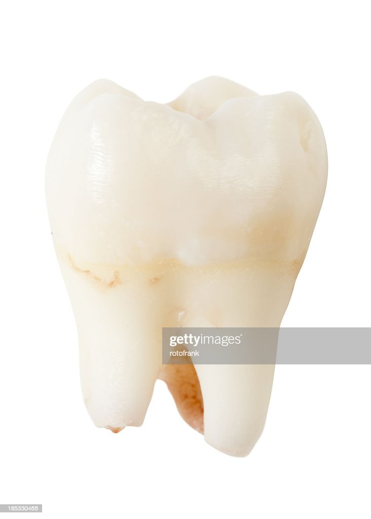 Wisdom tooth or third molar