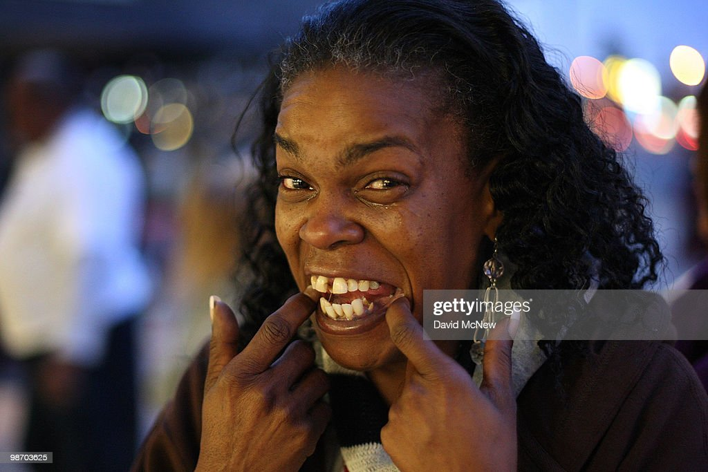 With tears of joy, Leticia Brown shows her teeth need extensive dental care, as she waits in line for free healthcare service at the Remote Area Medical (RAM) clinic at the Los Angeles Sports Arena on April 27, 2010 in Los Angeles, California. More than 6,000 people were given wristbands over the weekend, some of them waiting overnight, to receive the free medical, dental and vision care. RAM hopes to treat 8,400 patients at the event which runs from April 27 to May 3. A Los Angeles-area RAM event in 2009 provided more than 14,500 services to approximately 6,344 patients. Los Angeles is reportedly home to 2.2 million uninsured people.