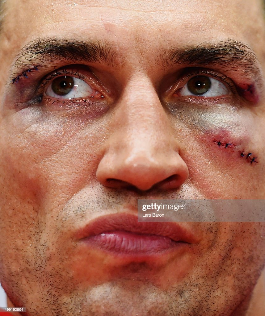 Wladimir Klitschko looks on at the press conference after he losed his World Heavyweight title to Tyson Fury after the IBF IBO WBA WBO Heavyweight World Championship contest at Esprit-Arena on November 28, 2015 in Duesseldorf, Germany.