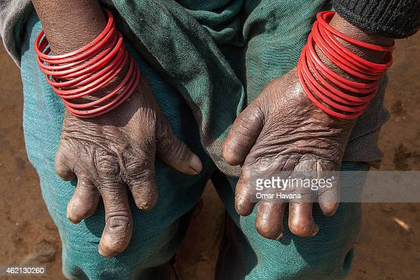 A woman affected by leprosy shows her hands outside a self care house provided by Leprosy Mission Nepal near the Anandaban Hospital on January 24...