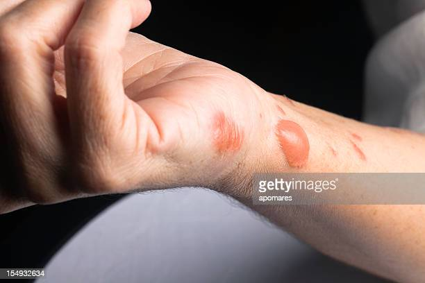 Woman arm with actual second degree burn