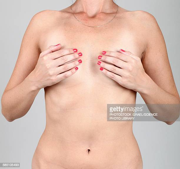 Woman covers her breasts