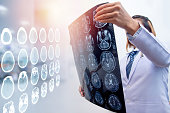 woman doctor holding MRI film to diagnosis injury area of brain with double exposure of brain CT scan