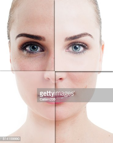 Woman face divided in parts with perfect and imperfect skin : Stock Photo
