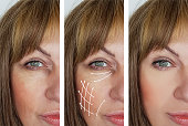 woman facial wrinkles correction before and after procedures arrow