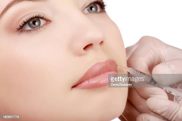 A woman getting a botex injection in her top lip