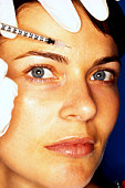 Woman getting collagen injection