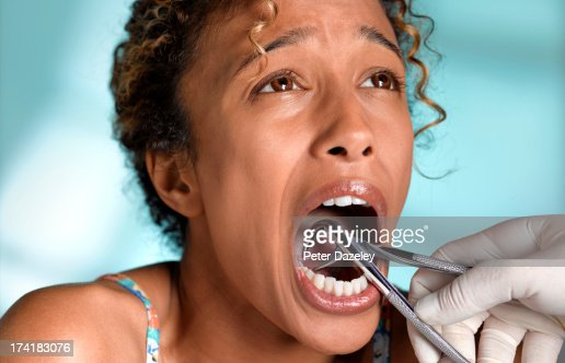 Woman having tooth removed