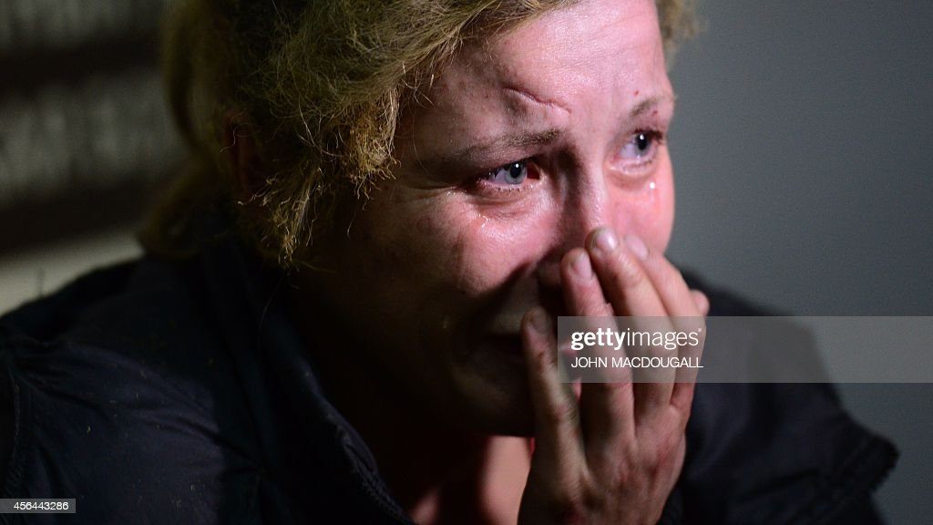 A woman injured at a bus station during a shelling cries after being taken to Donetsk hospital on October 1 2014 Ten civilians died in attacks in...
