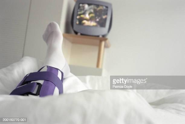 Woman lying in hospital bed, leg in cast (focus on leg)