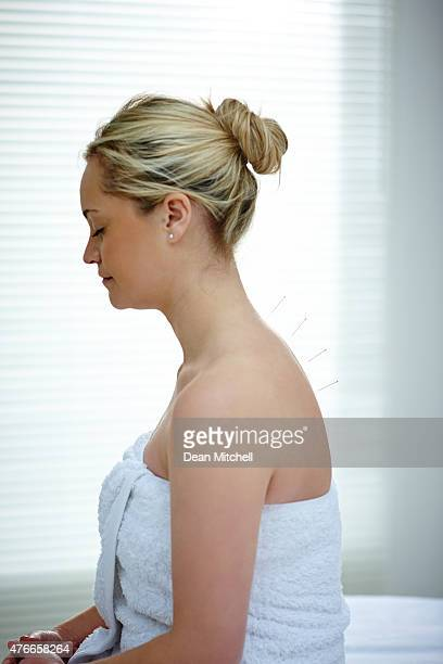 Woman receiving acupuncture treatment to back