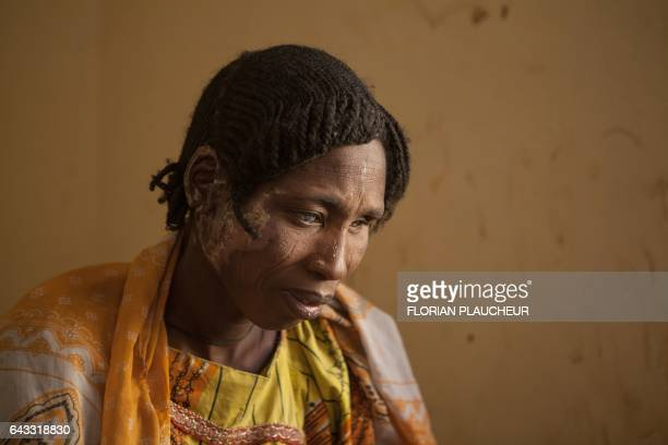 TOPSHOT A woman receiving medical care for burns following clashes between the military and Boko Haram Islamists sits on a bed in Borno State...