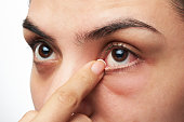 close up of woman show her red sick eye with finger