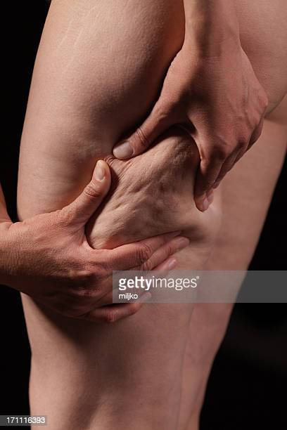 Woman showing cellulite on thigh