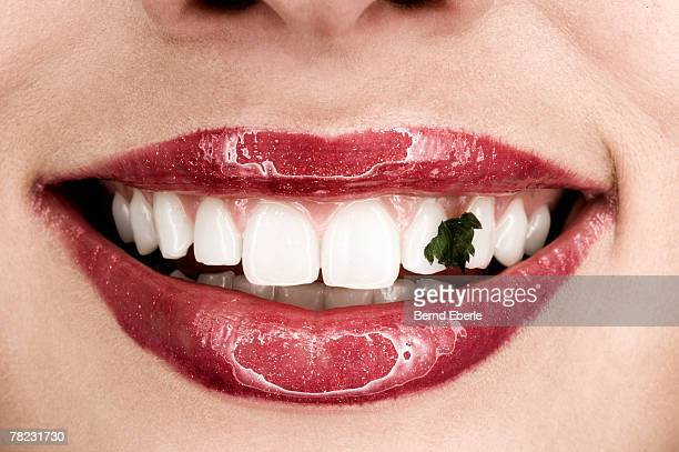 woman showing smile with dirty teeth