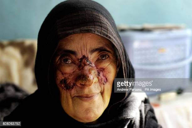 A woman suffering from leishmaniasis a disease transmitted by sand flies at the Maywand Hospital in Kabul Afghanistan Wednesday December 14 where the...