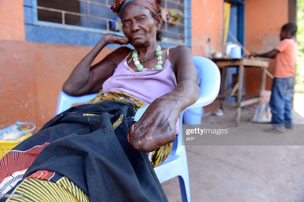 A woman suffering from Leprosy sits in a chair on January 25, 2013 on the terrace of the Hopital de la Rive in Kinshasa, Democratic Republic of Congo. Leprosy has been called the world's oldest recorded disease, an evil that humans have known for more than 3,500 years, as papyri from ancient Egypt testify. The World Leprosy Day is to be held on January 26. AFP PHOTO / Photo junior D.kannah