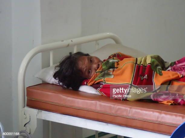 A woman suffering from psychological trauma brought by the war in Marawi