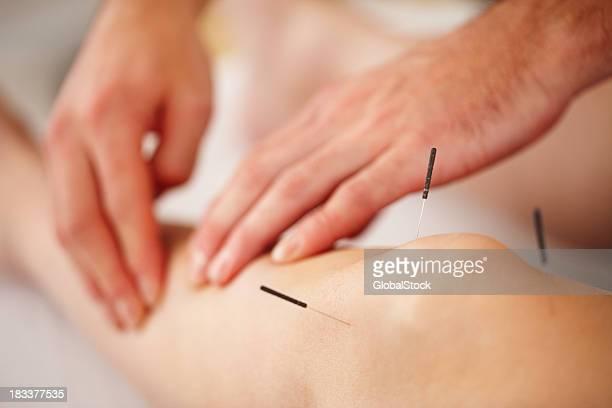 Frau mit Akupunktur-Behandlung