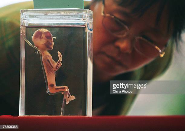 A woman views an embryo specimen during the 'Human Body's Wonder Scientific Travelling Exhibition' October 26 2007 in Nanjing of Jiangsu Province...