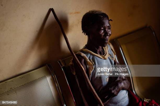 A woman waits to be treated in Bunj clinic which cares for people from Doro refugee camp in BunjMaban in the Upper Nile Blue Nile state of...