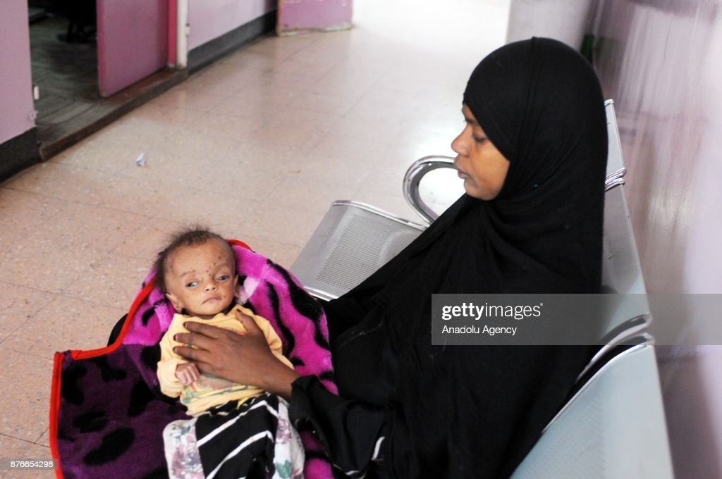 Children In Yemen Continue To Suffer On Universal Children's Day