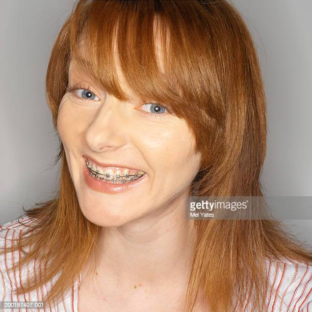 Woman wearing orthodontic braces, smiling, portrait, close-up