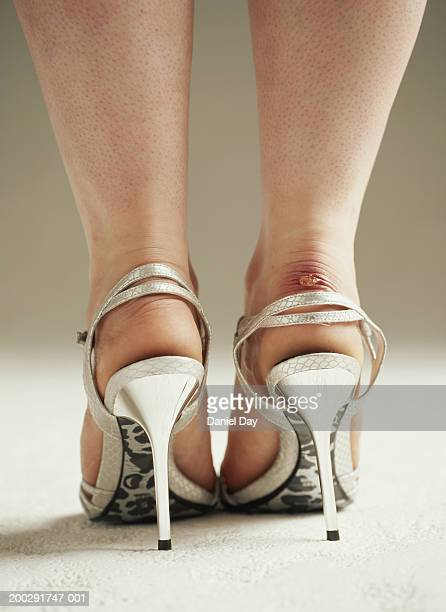 Woman wearing stilletoe shoes with sore heel, low section