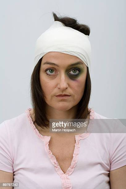 A woman with a black eye and bandaged head