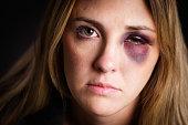 Woman with a Black Eye