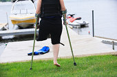 Woman with a prosthetic leg and crutches heading for waterskiing