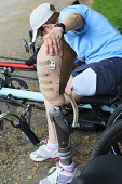 Woman with a prosthetic leg getting into an adaptive cycle
